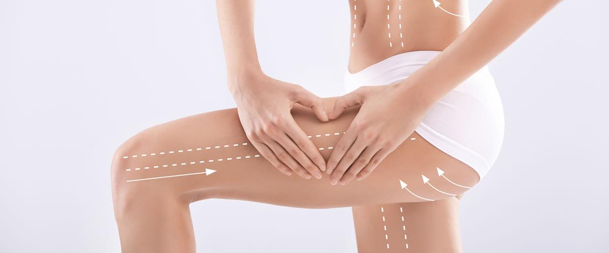 LESC Lipoemulsione Sottocutanea elimina il grasso
